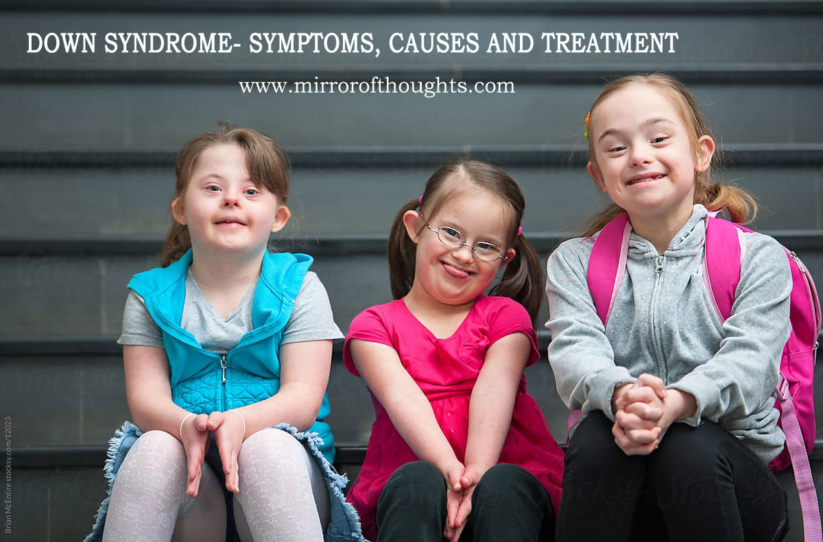 Down Syndrome- Symptoms, Causes and Treatment